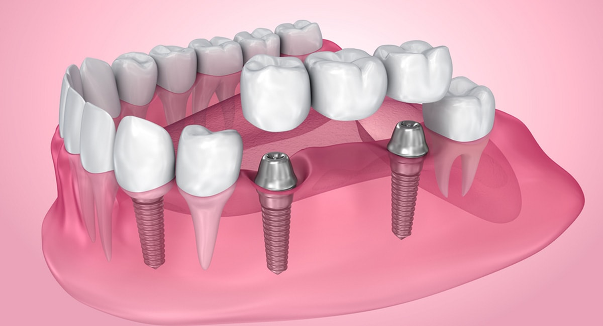 Dental Implants: How Long Does the Process Take?